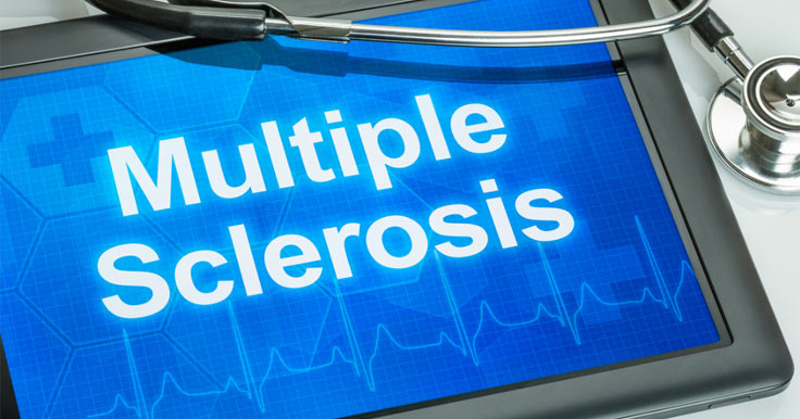 Myths about Multiple Sclerosis (MS)