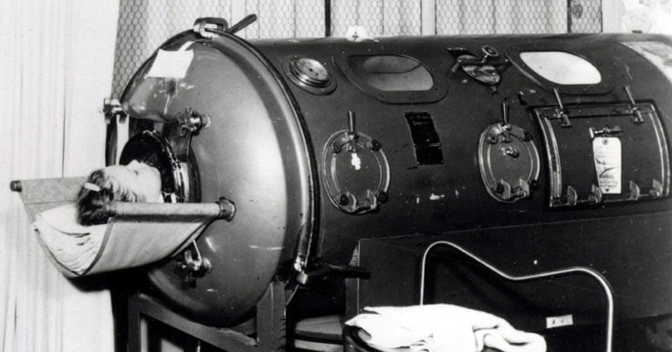 Young girl in an iron lung