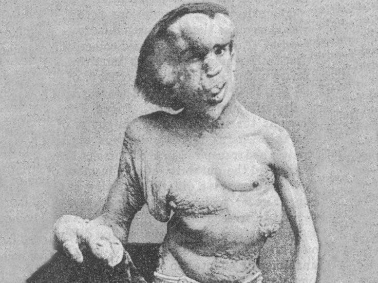 Joseph Merrick posing