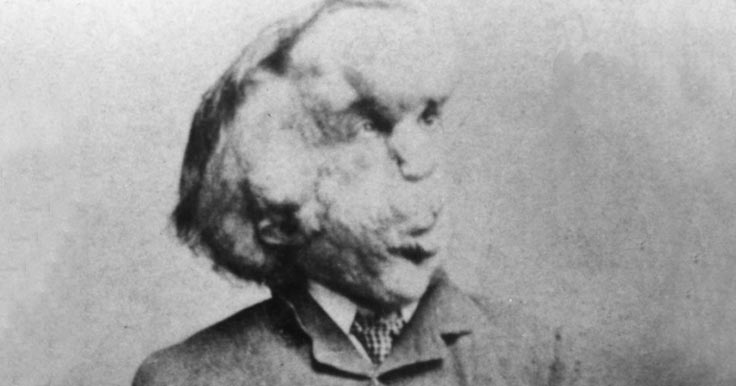 Portrait of Joseph Merrick