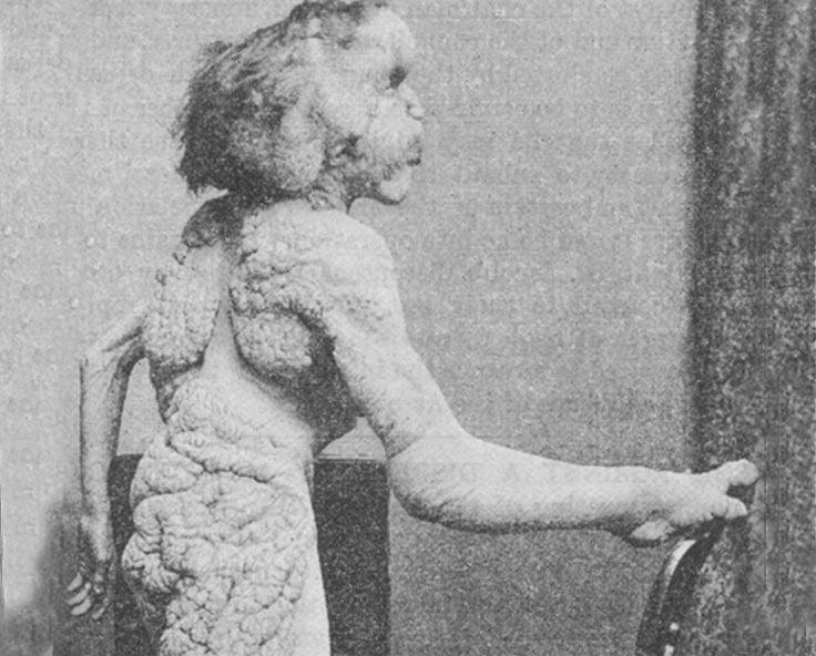 Joseph Merrick posing with a chair