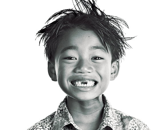 Child with a disability with a big smile and spiky hair